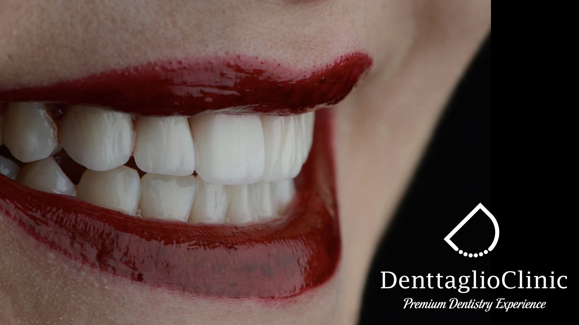 denttaglio clinic, fatete dentare, digital smile design, klodian hazizi, monica hazizi, fateta dentara, fatete dentare pret, jambe de hollywood, zambet perfect, cat costa fatetele dentare, avantaje facete dentare, fatete dentare parere, farete dentare da sau nu, cum se pun fatetele dentare, ce avantaje au fatetele dentare, cum se intretin fatetele dentare, clinica stomatologica, clinica stomatologica bucuresti, cabinet stomatologic bucuresti, cabinet stomatologic floreasca