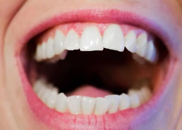 inflamația țesutului conjunctiv al dintelui)